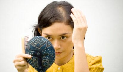 Calvicie Femenina: Ellas pieden más que cabello